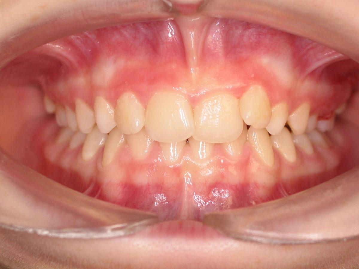 Traitement orthodontique adolescent
