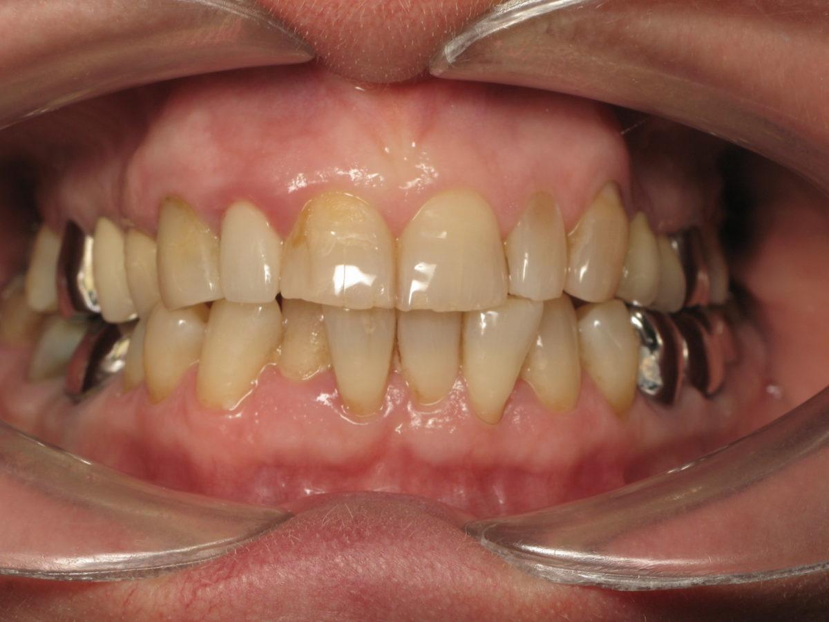 Traitement orthodontique senior