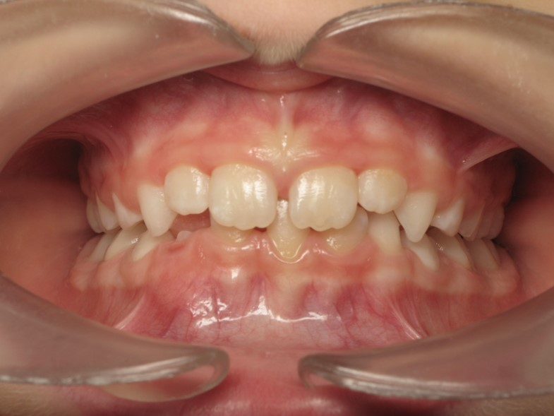 Traitement orthodontique petite enfance